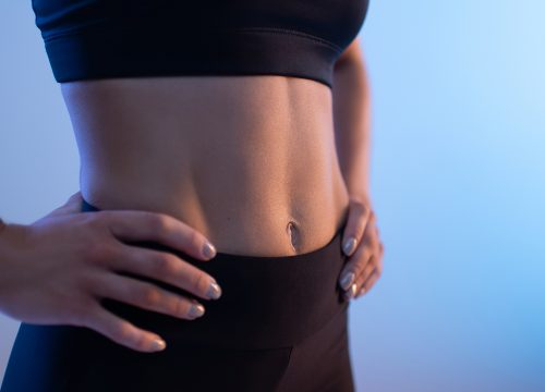 Sculpted waistline after CoolTone treatments