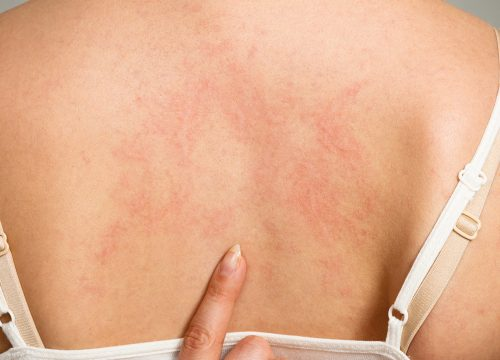 Eczema on a woman's back