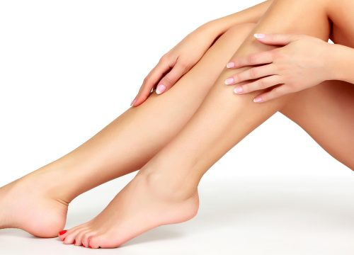 Woman's legs after spider vein treatments