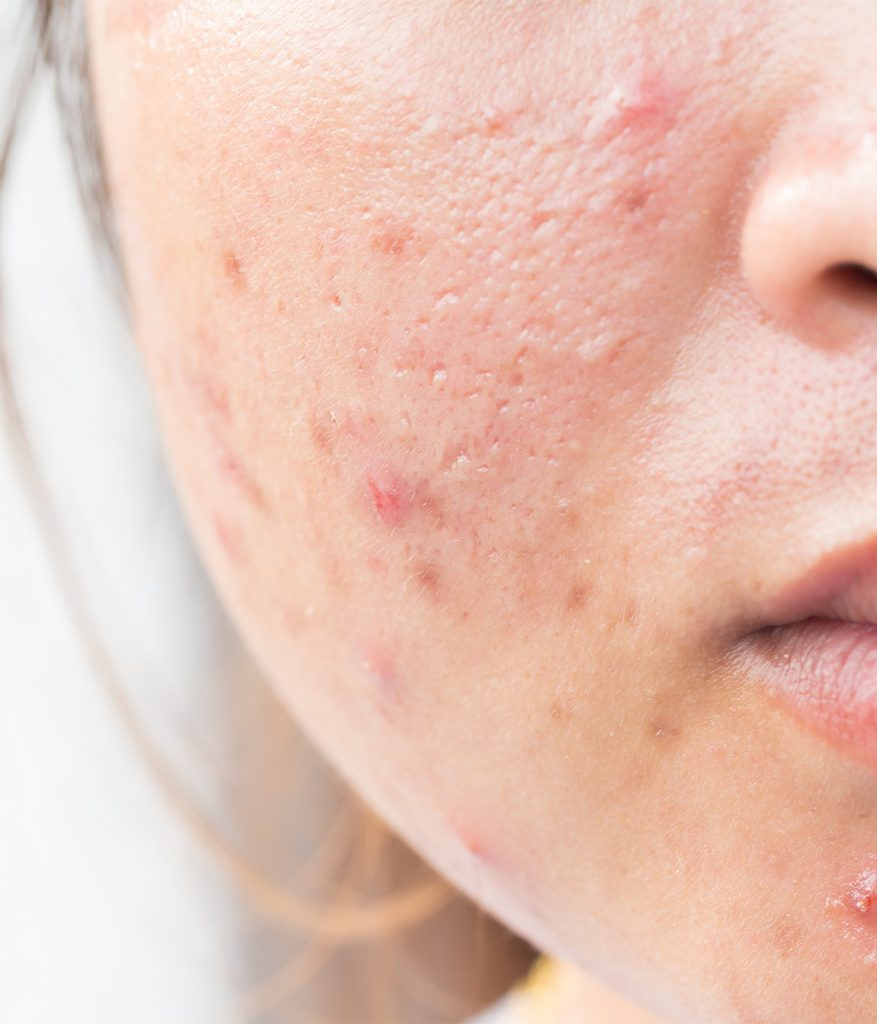 Facial acne and acne scars