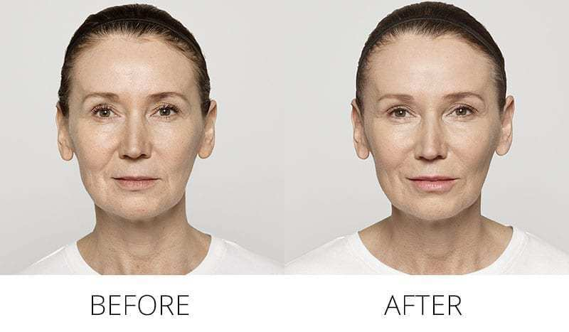 Before and after Aquagold results