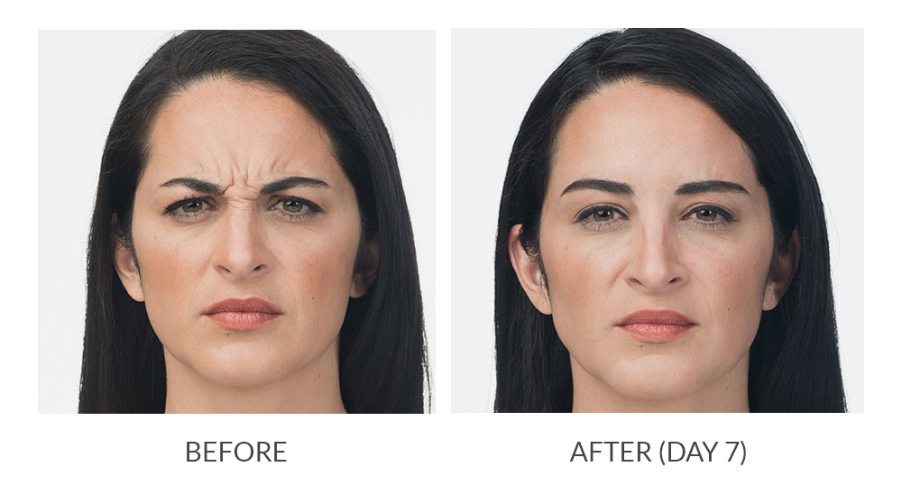 Before and after Botox results