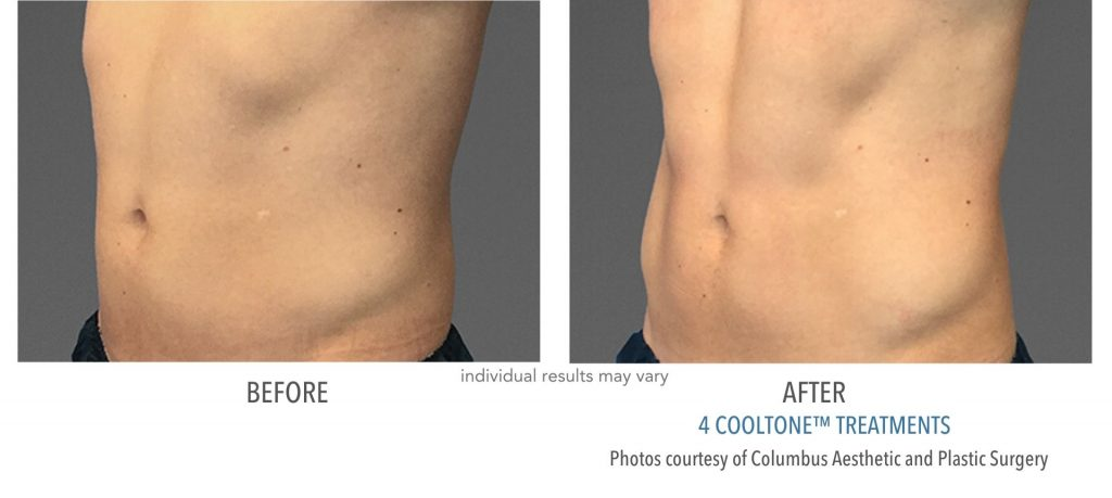 Before and after CoolTone results