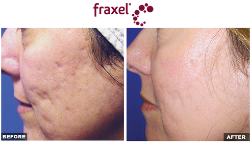 Before and after results for Fraxel