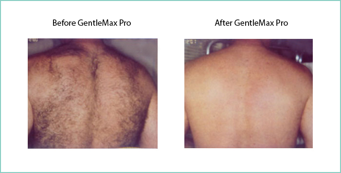Before and after laser hair removal results