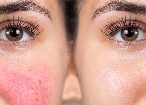Rosacea on a woman's face